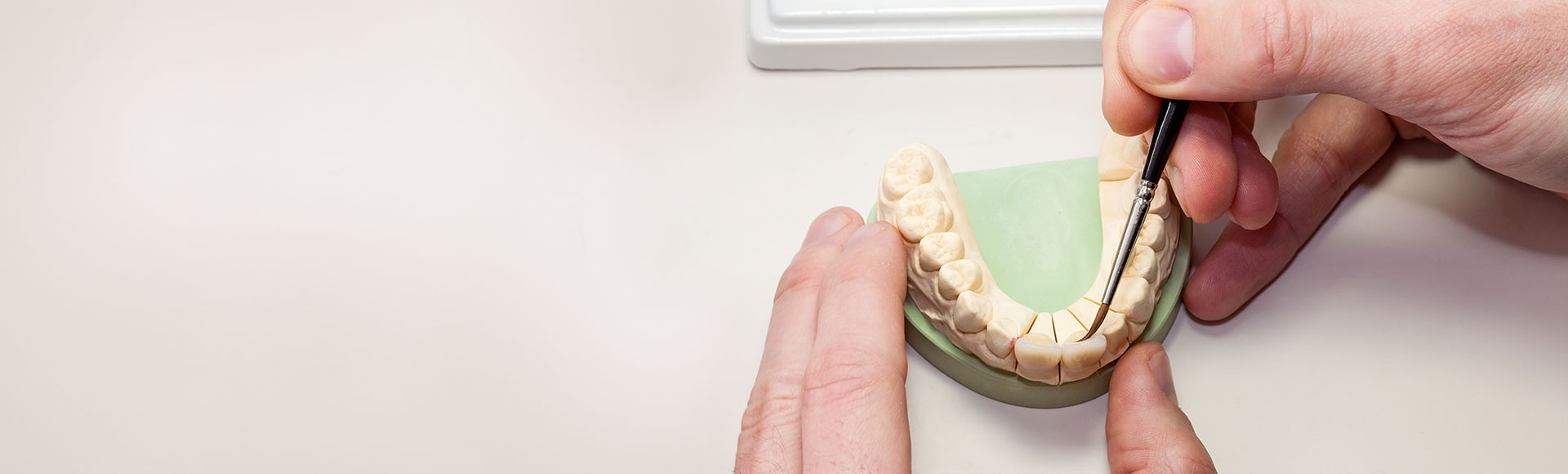 Zahnersatz Garrel Oldenburg Zahntechniker Dentallabor